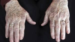 images artrtis 1