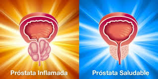 Prostata inflamada